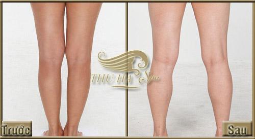 Trước và sau khi tắm trắng toàn thân hiệu quả tại Thu Hà Spa.