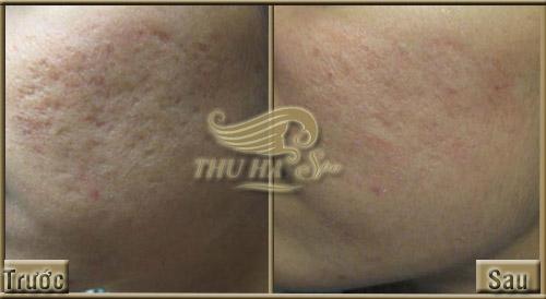 Trước và sau khi đến Thu Hà Spa tại Thanh Hóa điều trị sẹo lõm
