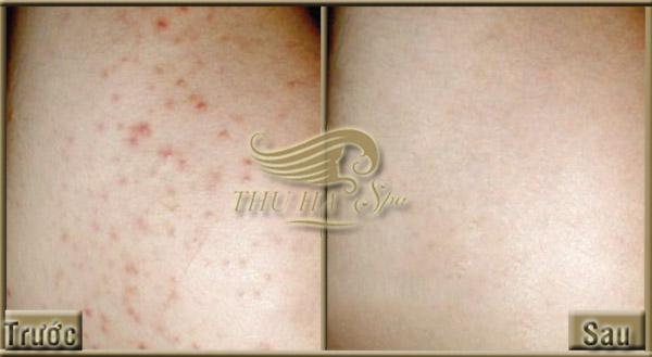 Trước và sau khi đến spa trị viêm nang lông uy tín tại Thanh Hóa.