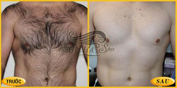 Triệt lông bụng, triệt lông ngực cho nam giới
