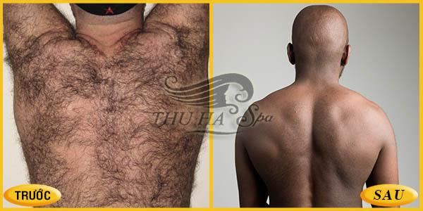 Triệt lông lưng cho nam giới