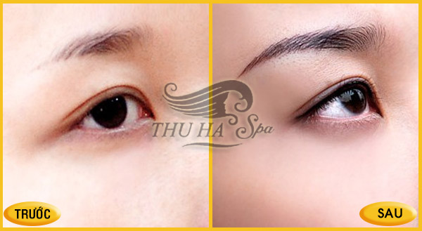 Trước và sau phun xăm chân mày và mí mắt tại Thu Hà Spa ở Thanh Hóa.